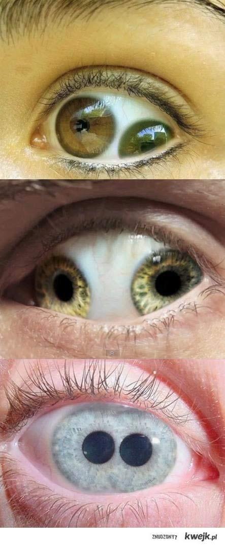 magia oczu...