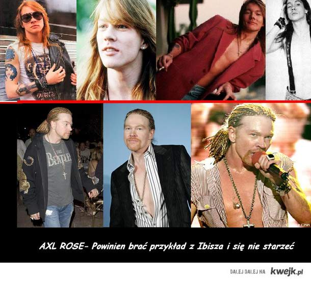 Axl rose before and after