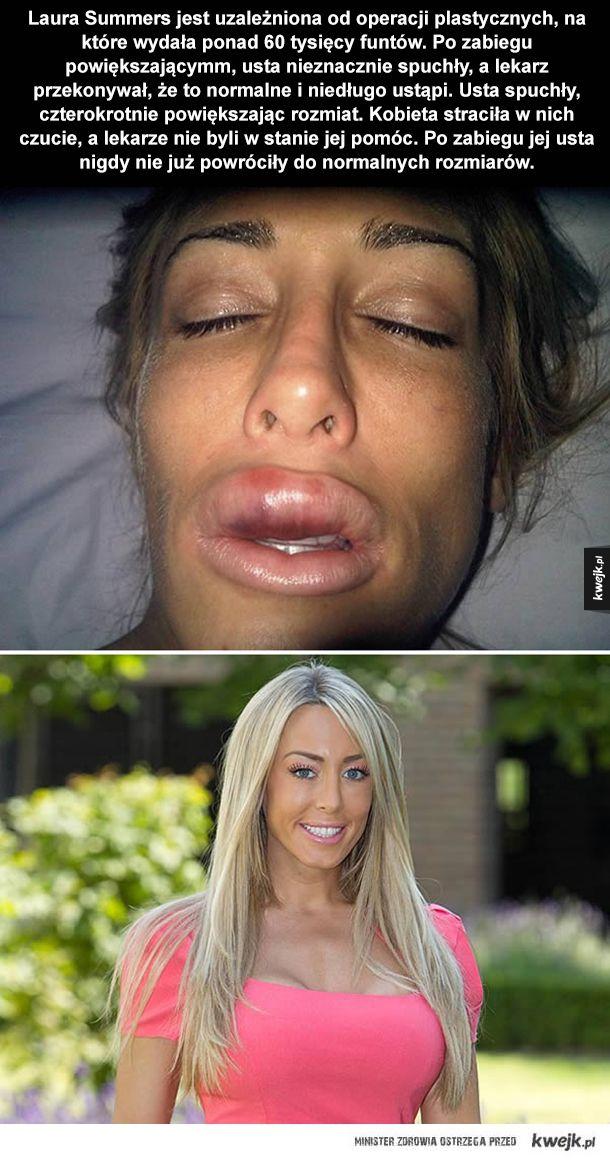 Fatalne skutki powiększania ust