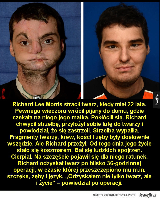 Przeszczep twarzy