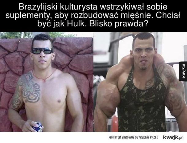 Brazylijski kulturysta wstrzykiwał sobie  suplement, aby rozbudować mięśnie. Chciał  być jak Hulk. Blisko prawda?