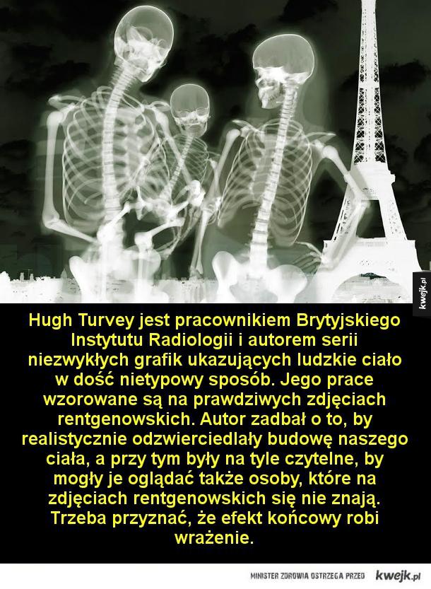 Niesamowite obrazy ludzkiego ciała - Hugh Turvey jest pracownikiem Brytyjskiego Instytutu Radiologii i autorem serii niezwykłych grafik ukazujących ludzkie ciało w dość nietypowy sposób. Jego prace wzorowane są na prawdziwych zdjęciach rentgenowskich. Autor zadbał o to, by realistycznie odzwi