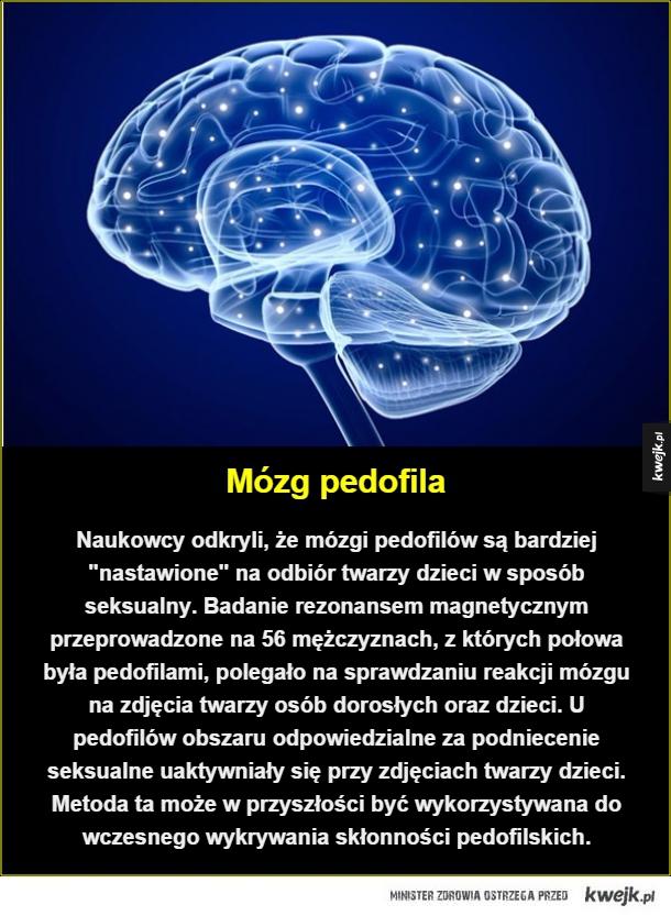 Wczesne wykrywanie - Mózg pedofila. Naukowcy odkryli, że mózgi pedofilów są bardziej
