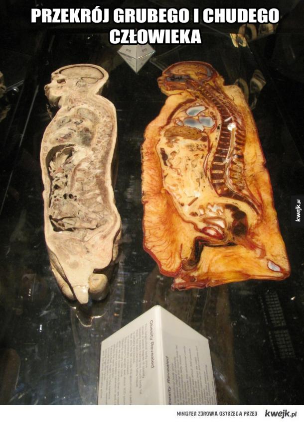 Grube kości
