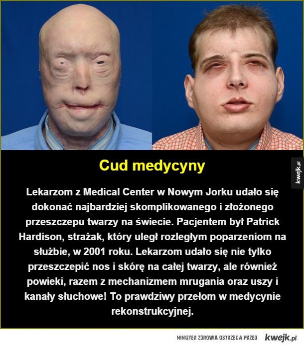 Skomplikowany przeszczep twarzy - Cud medycyny. Lekarzom z Medical Center w Nowym Jorku udało się dokonać najbardziej skomplikowanego i złożonego przeszczepu twarzy na świecie. Pacjentem był Patrick Hardison, strażak, który uległ rozległym poparzeniom na służbie, w 2001 roku. Lekarzom udał