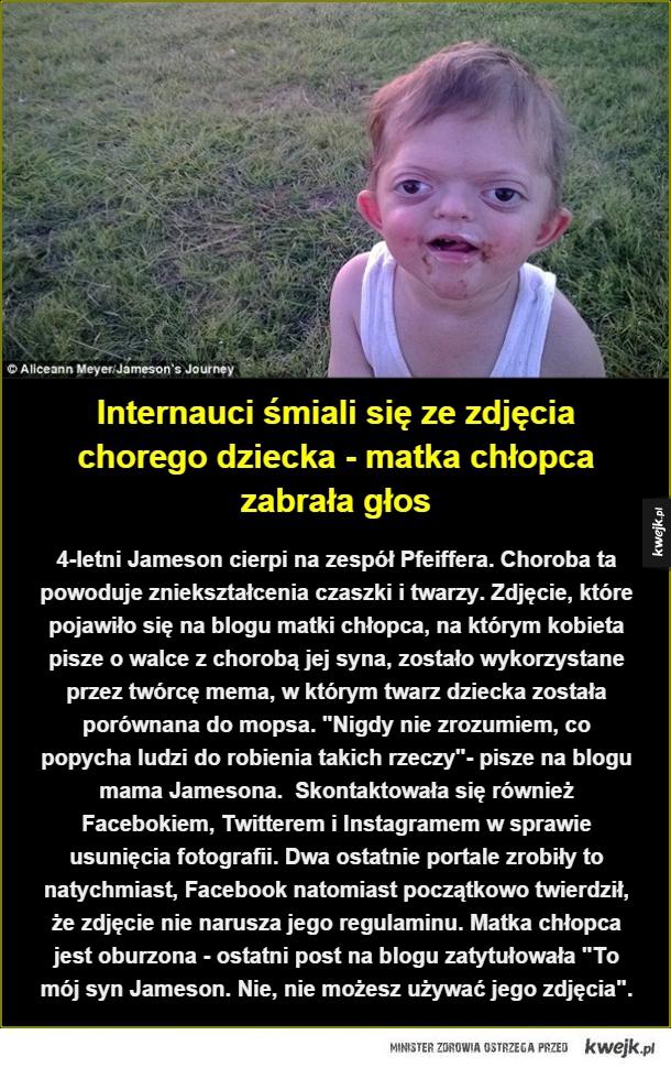 Apel matki chorego chłopca - 4-letni Jameson cierpi na zespół Pfeiffera. Choroba ta powoduje zniekształcenia czaszki i twarzy. Zdjęcie, które pojawiło się na blogu matki chłopca, na którym kobieta pisze o walce z chorobą jej syna, zostało wykorzystane przez twórcę mema, w którym twarz