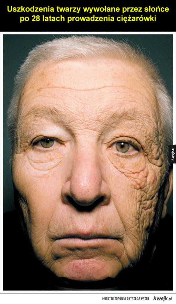 uszkodzenia twarzy