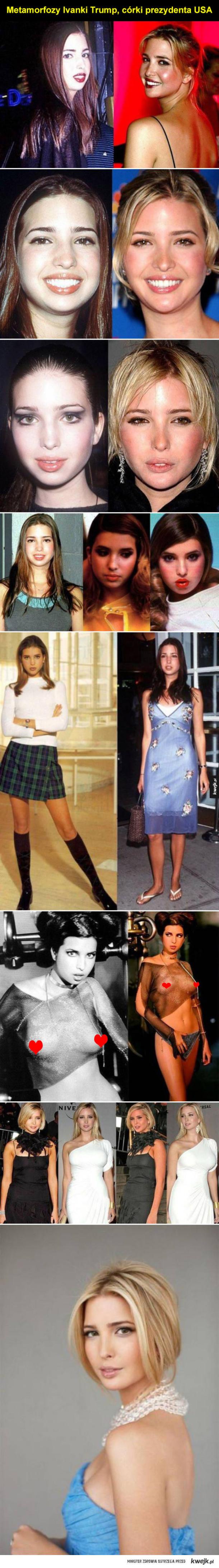 Ivanka Trump przed i po operacjach plastycznych