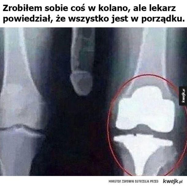Uszkodziłem sobie kolano