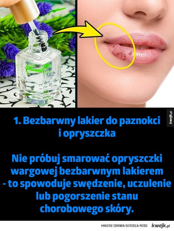 Tricki z internetu, które mogą poważnie zaszkodzić - 1. Bezbarwny lakier do paznokci  i opryszczka  Nie próbuj smarować opryszczki wargowej bezbarwnym lakierem - to spowoduje swędzenie, uczulenie lub pogorszenie stanu  chorobowego skóry.