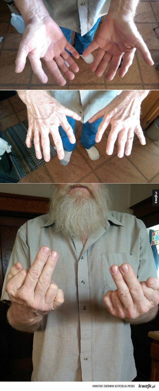 Kiedy posiadasz 12 palców u rąk