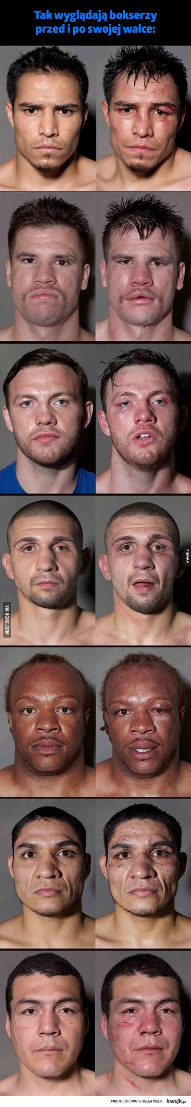 Bokserzy przed i po walce