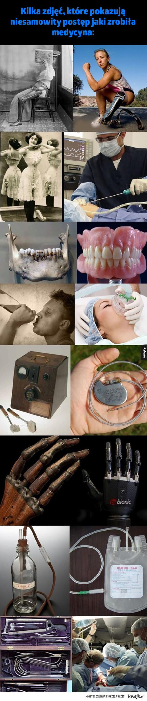 Postęp medycyny