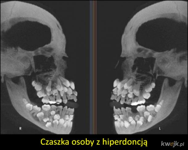 Ciekawe zdjęcia rentgenowskie