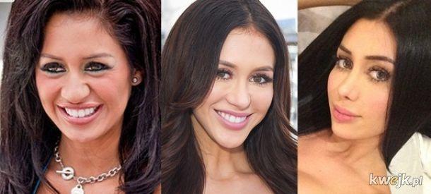 Gwiazdy Instagrama przed operacjami plastycznymi, obrazek 10