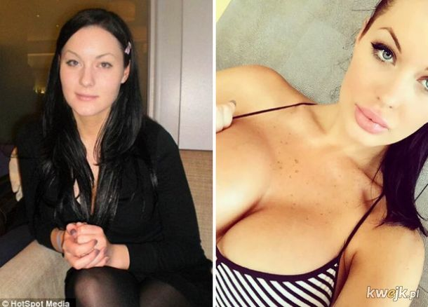 Gwiazdy Instagrama przed operacjami plastycznymi