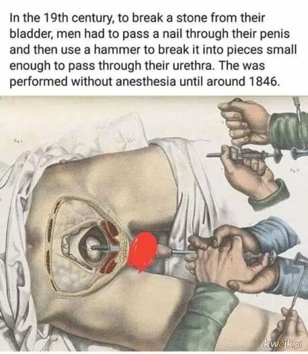 Pielęgniarki musiały mieć wtedy niezłą zabawę
