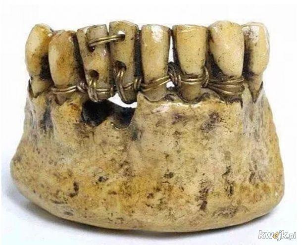 jeśli narzekasz na wizyty u dentysty - popatrz na to!