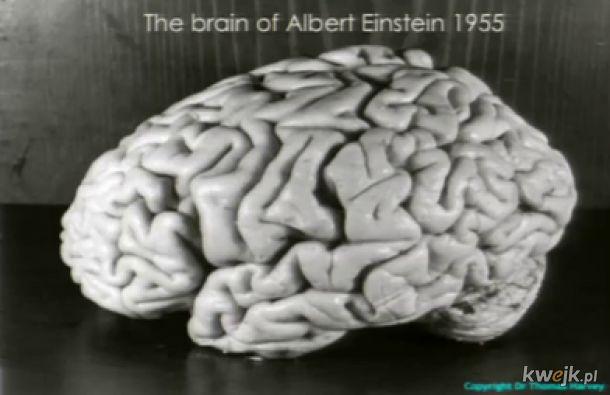 Mózg Einsteina