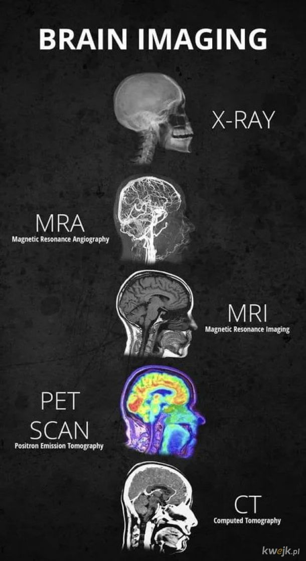 Praca Fizyka Medycznego