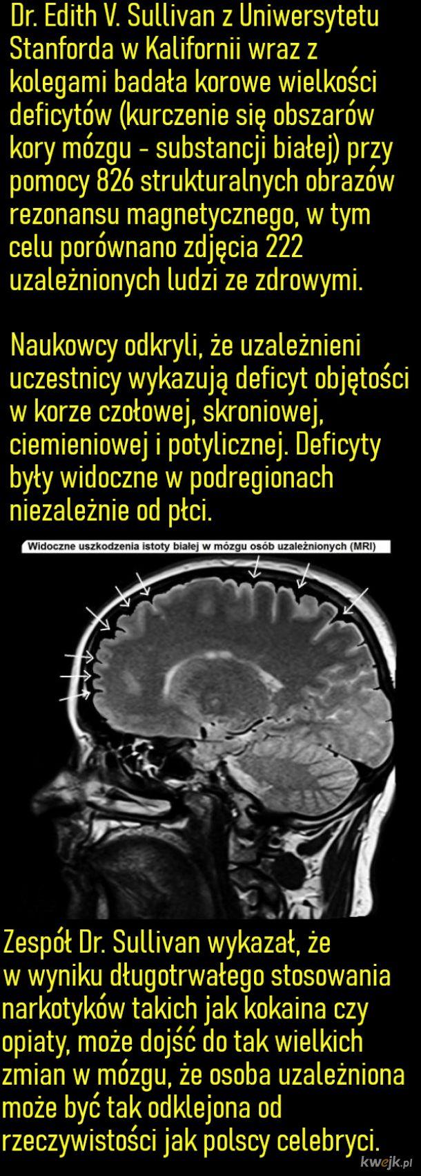 Badanie deficytów w mózgu