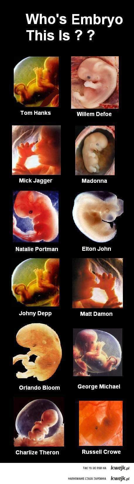 Zgadnij czyj to płód ?